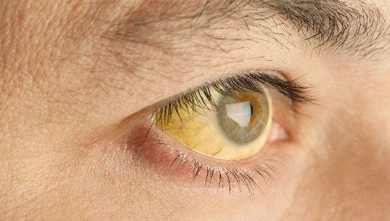 mắt vàng bị bệnh gan