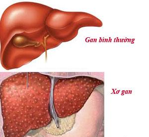 so sánh gan bình thường và gan mắc bệnh
